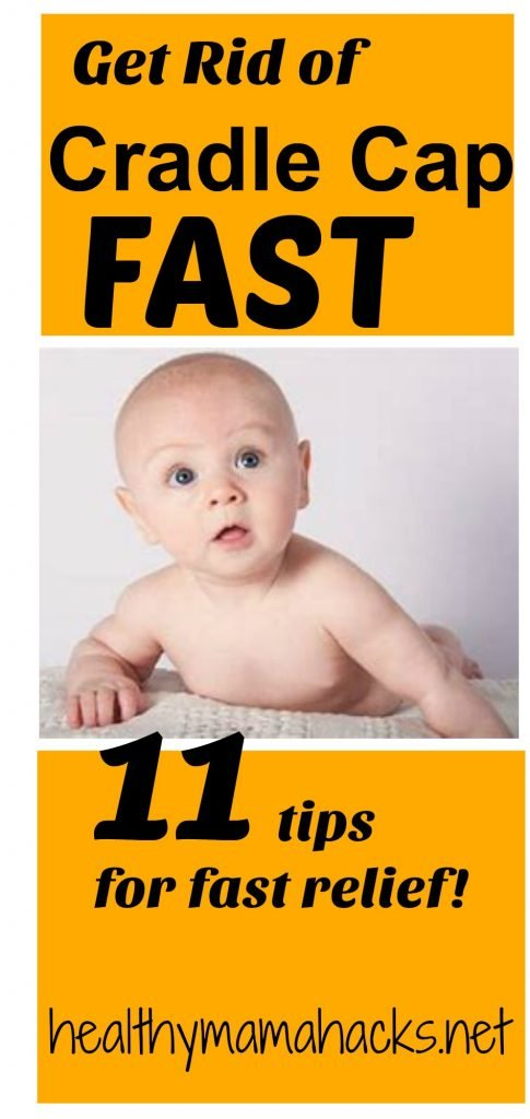 11 natural remedies for fast relief of cradle cap