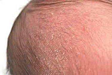 natural remedies for cradle cap