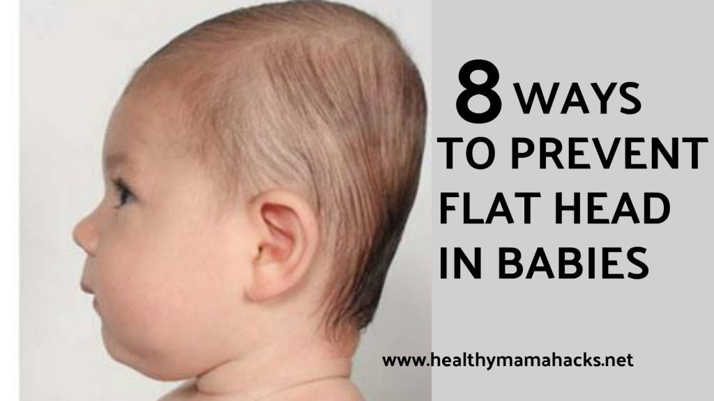 8 Ways to Prevent Flat Head Syndrome