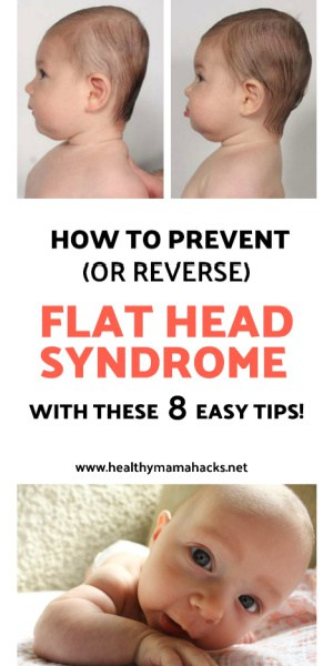 Plagiocephaly pin - how to prevent flat head syndrome in your baby!